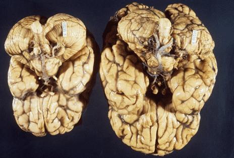 ตัวอย่างสมองที่มีขนาดเล็กผิดปกติเนื่องจากความผิดปกติในการพัฒนาของสมอง
