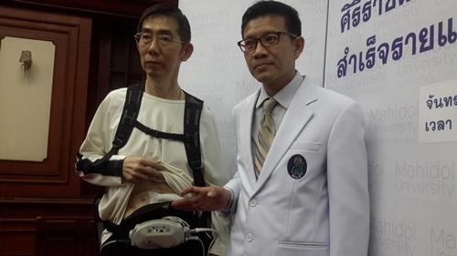 ศิริราชโชว์เจ๋ง! ผ่าตัดใส่หัวใจเทียมสำเร็จครั้งแรกในไทย