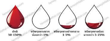ภาพจาก www.hemophiliathai.com