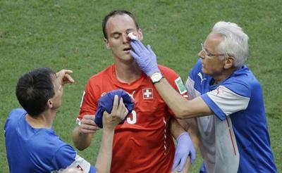 สตีฟ วอน เบอร์เกน ของสวิส ถูกโอลิวิเยร์ ชิรูด์ ดาวเตะฝรั่งเศส เตะจนกระดูกใบหน้าแตก แข่งรอบแรก