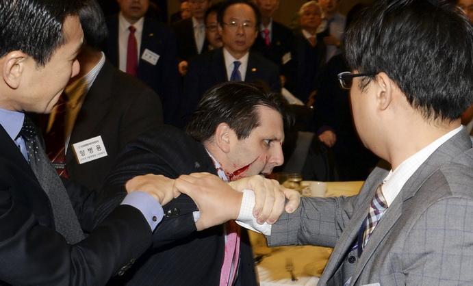 """โสมแดงเตือนทูตมะกัน """"มาร์ก ลิปเพิร์ต"""" จะโดนหนักกว่า """"กรีดหน้า"""" ถ้าไม่เลิกดูหมิ่นเกาหลีเหนือ"""