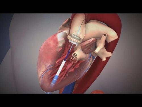 """TAVI"" เทคนิคการเปลี่ยนลิ้นหัวใจไม่ต้องผ่าตัดเปิดหน้าอก"
