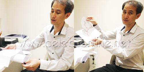 คุณหมอธันยพงษ์ สาธิตการย้ายไขมันแบบมีขั้วเส้นเลือดติดมาด้วย ผ่านกระดาษและการวาด เพื่อให้เห็นภาพเข้าใจง่ายขึ้น
