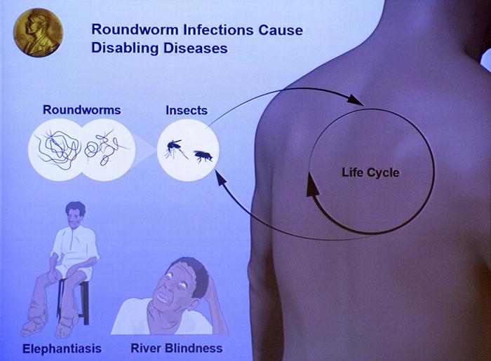 ภาพวาดอธิบายงานวิจัยเกี่ยวกับการติดเชื้อจากหนอนตัวกลมของผู้ได้รับรางวัลโนเบลแพทย์ในปี 2015 ซึ่งประกาศผลเมื่อ 5 ต.ค.2015 ณ สถาบันแคโรลินสกา (Karolinska Institute) สตอกโฮล์ม สวีเดน (AFP PHOTO / JONATHAN NACKSTRAN)