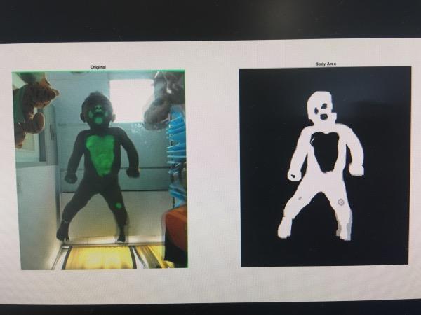 เมื่อผิวสัมผัสกับกระจก แสงสีเขียวจะฉายและกล้องจะถ่ายภาพ หากเด็กปกติหน้าอกจะแนวกับกระจกเป็นแนวตรง แต่หากเป็นเด็กผิดปกติจะมีการทรงตัวเอียงเกินความสมดุล