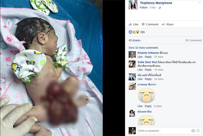 ทารกเคราะห์ร้ายในลาว เกิดมาเครื่องในทะลักนอกท้อง พ่อแม่ยากจนขอสังคมช่วยเหลือ