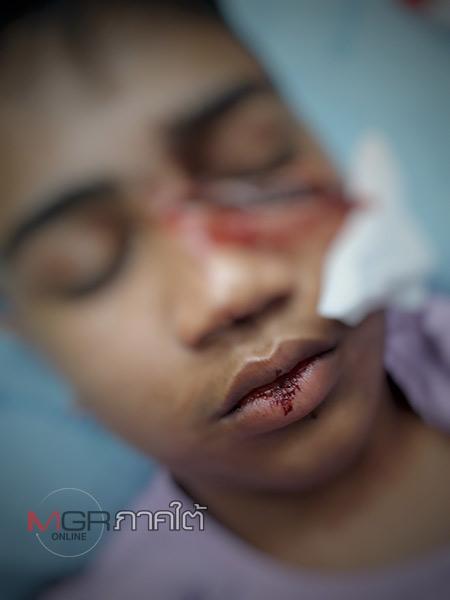 พี่ชายร้องสื่อ! น้องชายถูกวัยรุ่นใช้มีดสปาต้าไล่ฟันเป็นแผลเหวอะ วอนตำรวจเร่งจับคนร้ายโดยเร็ว