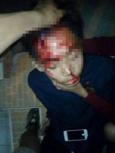 ผู้ถูกยิงได้รับบาดเจ็บสาหัส
