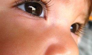 ตาบอดในเด็กที่รักษาได้