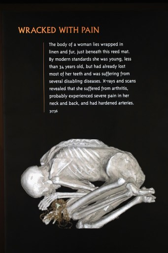 CHICAGO, IL: A CT scan on display at the Field Museum gives a look inside a still-wrapped Peruvian mummy to show a young woman with arthritis on March 13, 2018 in Chicago, Illinois. Scott Olson/Getty Images/AFP