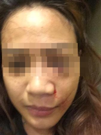 โผล่อีกราย! สาวเชียงใหม่ไลฟ์สดใบหน้าบวมปูดหลังโดนแฟนหนุ่มซ้อมปางตาย