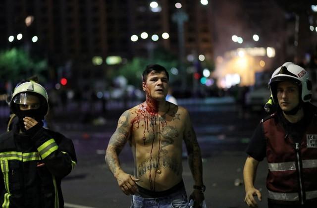 """เดือด! ผู้ประท้วงไล่ """"รัฐบาลโรมาเนีย"""" ปะทะเจ้าหน้าที่ เจ็บกว่า 450 ราย"""