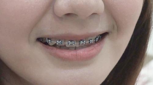 """ยัน """"โรคเหงือกอักเสบ-ปริทันต์"""" สามารถจัดฟันได้"""