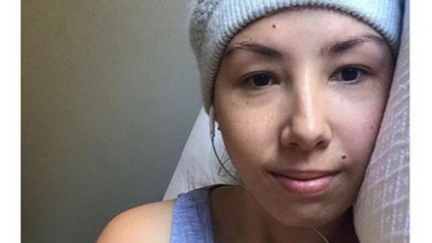 รวบสาวออสซี่จัดฉากเป็นมะเร็งลงสื่อออนไลน์ โกยเงินบริจาค1.2ล้านบาท