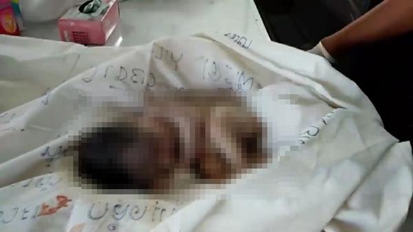 พบศพทารกแรกคลอดเพศหญิงถูกทิ้งในถังขยะ จ.ชลบุรี คาดฝีมือแม่ใจยักษ์