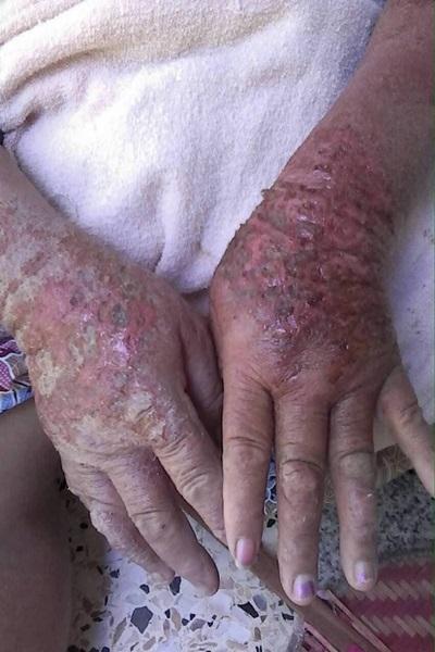 ผลกระทบจากสารพิษที่มนุษย์ขุดขึ้นมาจากชั้นใต้ดินลึกจากการทำเหมืองแร่