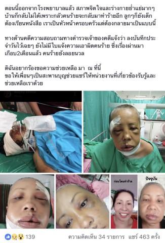 สาวใหญ่โพสต์ ลงโซเชียล ถูกทำร้ายปางตาย จนร่างกายทุพพลภาพ แจ้งตำรวจคดีไม่คืบ