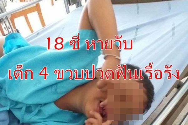 เกือบหมดปาก ฮือฮา ! หมอฟันซุปเปอร์ฮีโร่ ถอน 18 ซี่ เด็ก 4 ขวบ ปวดเรื้อรัง
