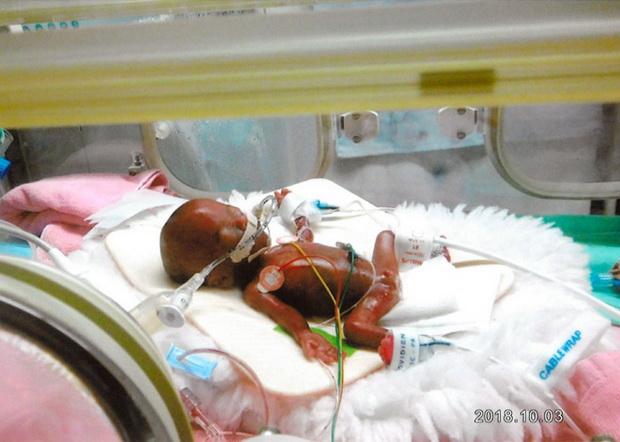 พระคุ้มครอง!ทารกแรกคลอดน้ำหนัก(285กรัม)น้อยที่สุดในโลก'มีชีวิตรอด'