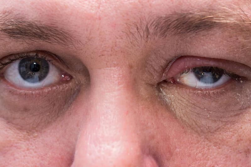 """เตือน!! ลืมตาไม่ขึ้นระหว่างวัน ทั้งที่ไม่ง่วงนอน อาจเป็นโรค """"เปลือกตาตกเฉียบพลัน"""" ต้องรีบพบแพทย์"""