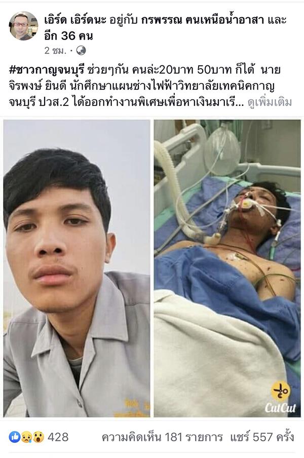 เกิดเหตุสลด!! หนุ่มเทคนิค รับจ้างทำพลุหาเงินเรียน โชคร้ายพลุระเบิดใส่ ต้องตัดแขนและขา