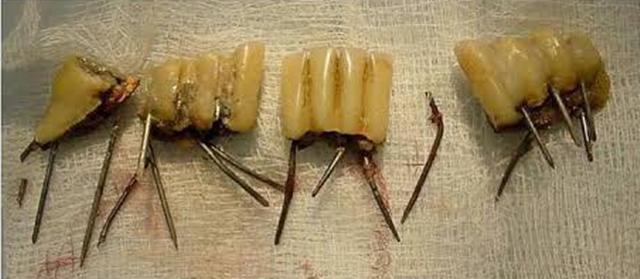 """เตือนใช้ """"ตะปู"""" ทำรากฟันเทียมเถื่อน เสี่ยงเกิดสนิม เป็นบาดทะยัก ติดเชื้อกระแสเลือดตาย"""