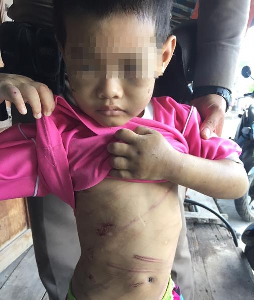 สุดทน!! แม่แท้ๆ ร่วมพ่อเลี้ยงกัมพูชาทำร้ายลูกชายวัย 6 ปีเจ็บปางตาย อ้างเครียดป่วย HIV