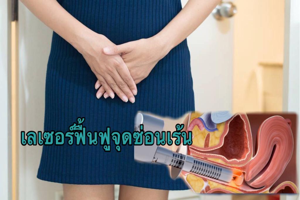 เลเซอร์ฟื้นฟูจุดซ่อนเร้นโดยไม่ต้องผ่าตัด เพิ่มความมั่นใจให้ผู้หญิง