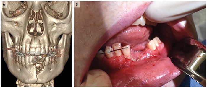 เตือนภัย! บุหรี่ไฟฟ้าระเบิดคาปาก วัยรุ่นมะกันกรามหัก-ฟันหาย