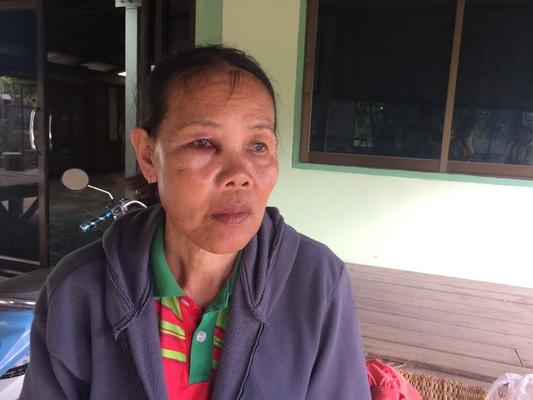 ชาวบ้านผวา!โปลิสยังตามจับโจรไม่ได้ หลังยายวัย59ถูกดักปล้นเงินขายผัก