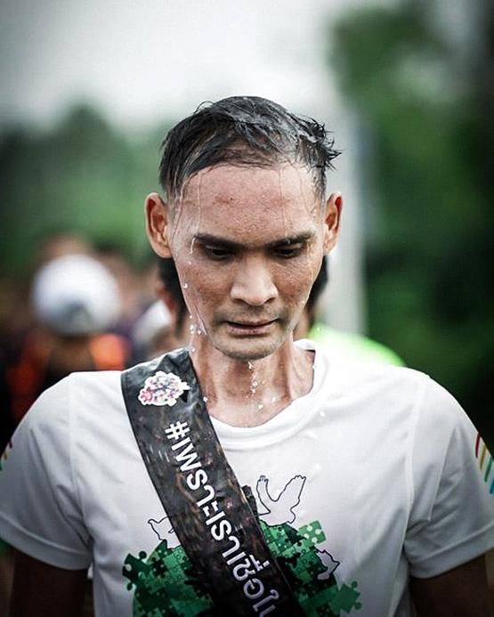 """""""แซม"""" นักวิ่งสู้มะเร็ง #สู้ดิวะเตรียมเข้าผ่าตัด ชาวเน็ตส่งกำลังใจล้นหลาม"""