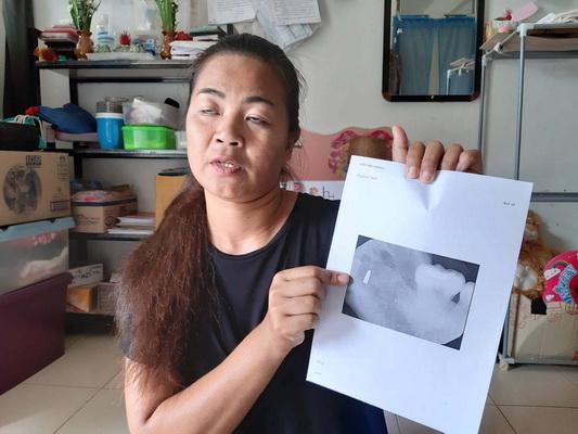 เมียตำรวจร้องแพทย์ลืมอุปกรณ์ทำฟันไว้ในเหงือก ทำปากชาอยู่อย่างทรมานนาน 5 ปี