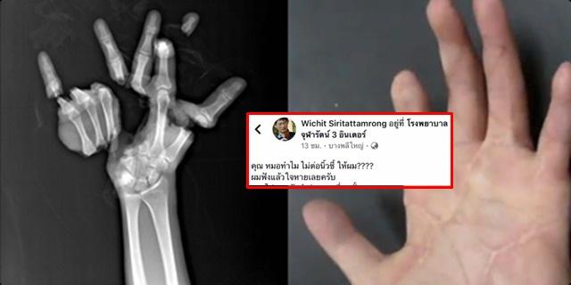 ชื่นชม หมอรักษาผู้ป่วย ถูกเครื่องปั้ม ตัดนิ้ว-ตัดฝ่ามือขาด จนกลับมาใช้งานได้ (ชมคลิป)
