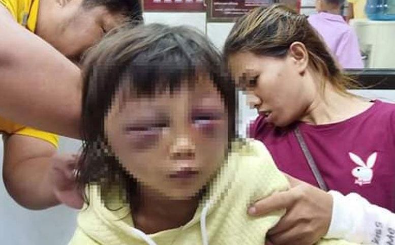พ่อเลี้ยงโหด ทุบตีลูกติดแม่วัย 5 ขวบจนตาปิด 2 ข้าง ร่างกายปูดบวม  อ้างเพื่อสั่งสอนไปลักของคนอื่น ด้านแม่บอกลูกตกบันได ไม่รู้ถูกผัวทำร้าย