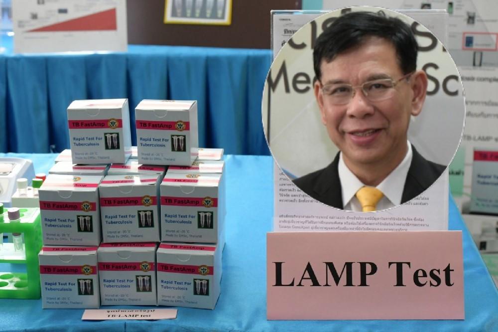 """สธ.พัฒนานวัตกรรม """"TB LAMP"""" ตรวจเชื้อวัณโรคไวขึ้น 1,000 เท่า จ่อใช้ ต.ค.-พ.ย.นี้"""