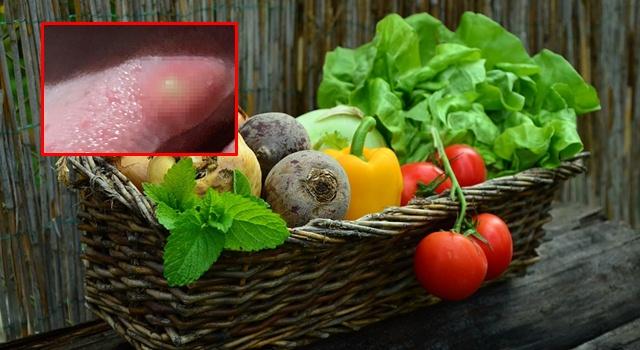 สยอง! เตือนภัยสายผักดิบ กินจนพยาธิตืดหมูฝังลิ้น ชี้สาเหตุเกิดจากผักไม่สะอาดพอ