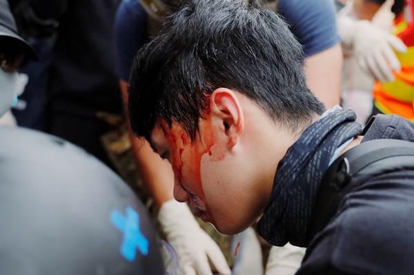 ผู้ประท้วงได้รับบาดเจ็บระหว่างประท้วงการโจมตีผู้โดยสารที่สถานีรถไฟใต้ดินของม็อบเสื้อขาว ภาพวันที่ 27 ก.ค.2019 (ภาพ รอยเตอร์ส)