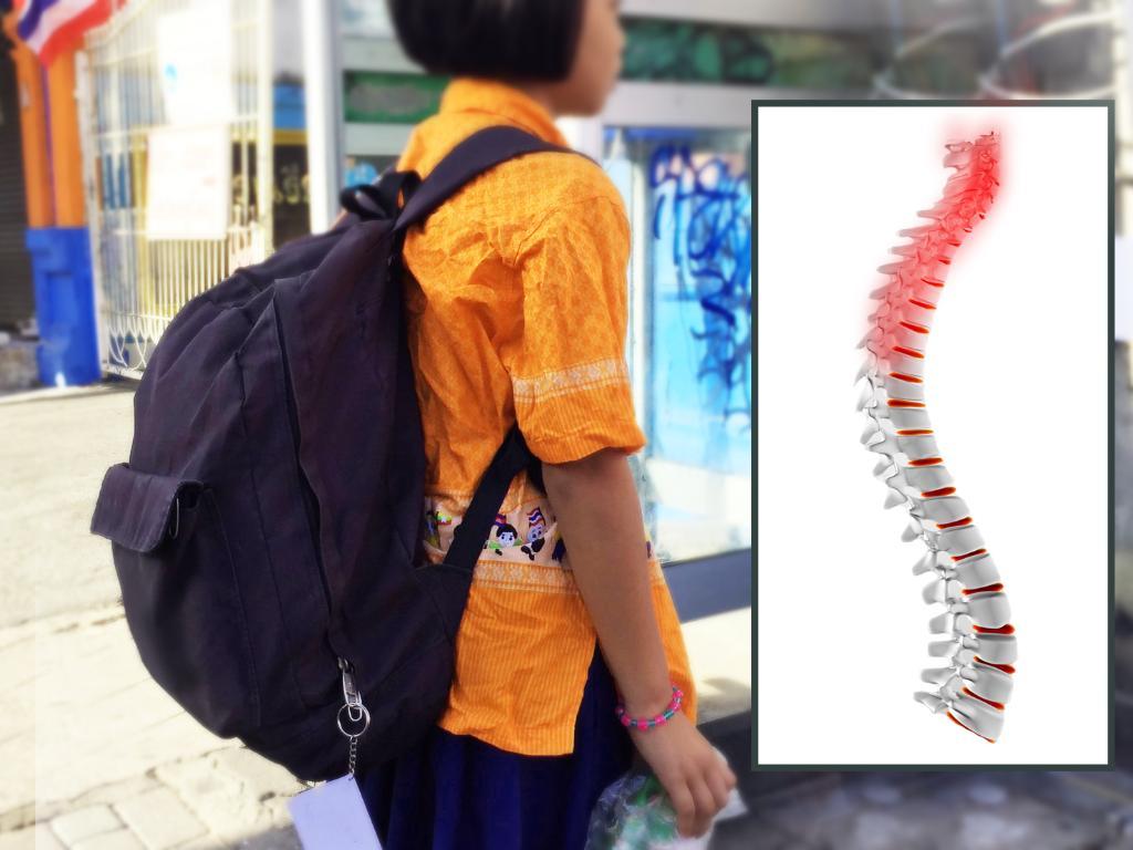 หมอ ชี้ เด็กสันหลังคดไม่ได้เกิดจากกระเป๋าหนัก แต่กระดูกผิดปกติด้วย