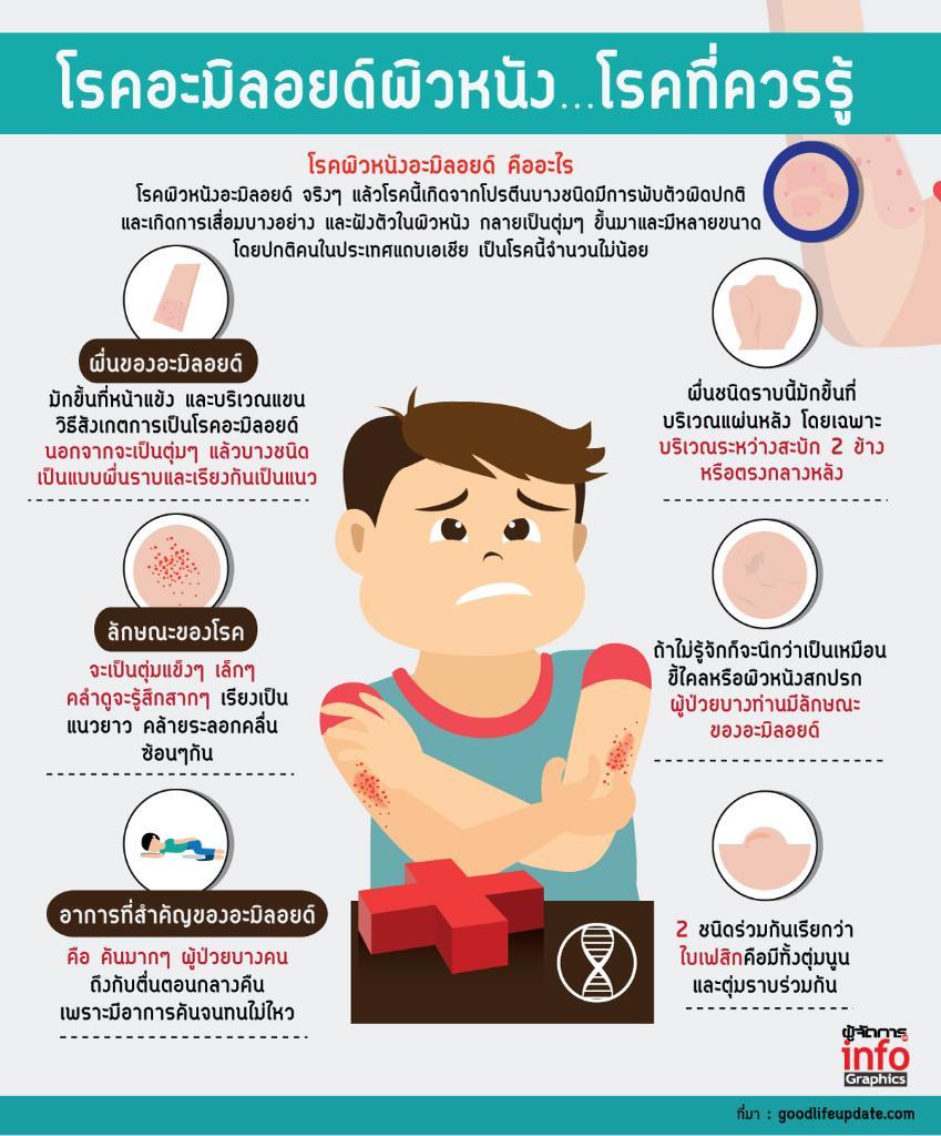 โรคอะมิลอยด์ผิวหนัง…โรคที่ควรรู้