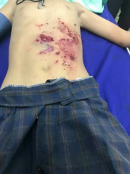 ประทัดยักษ์ระเบิดใส่มือเด็ก 10 ขวบหวิดขาด ผู้ว่าฯรุดเยี่ยมสั่งเข้มร้านขาย