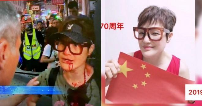 ถึงเลือด! ดาราฮ่องกงผู้ฝักใฝ่จีนโดนทำร้ายหลังพยายามถ่ายคลิปม็อบพัง ATM