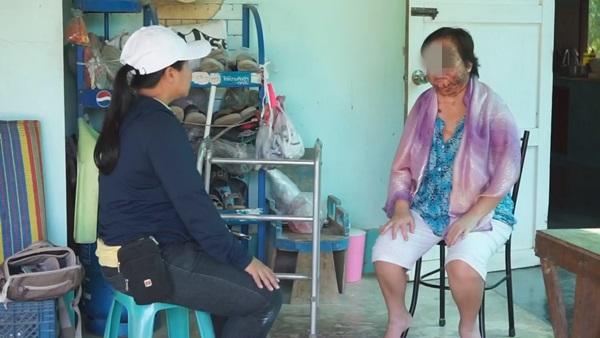 วอนสังคมช่วย.. สุดทรมาร สาวหัวหินป่วยเป็นโรคตุ่มน้ำพองเหมือน วินัย ไกรบุตร
