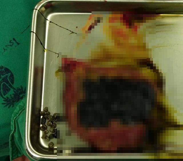 สยอง! หมอเผยภาพก้อนนิ่วคล้ายเม็ดชาไข่มุก แนะวิธีป้องกันควรควบคุมน้ำหนัก
