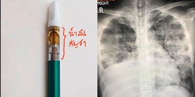 แพทย์เผย! พบผู้ป่วยปอดอักเสบเฉียบพลันจากการสูบบุหรี่ไฟฟ้า ผสมสารกัญชา