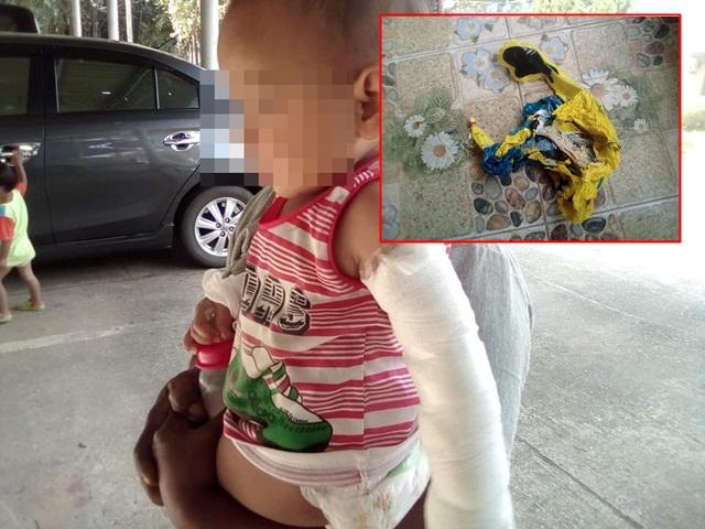 แม่เตือนอุทาหรณ์ หลังลูกน้อยถูกลูกโป่งอัดแก๊สระเบิดใส่แขนได้รับบาดเจ็บ