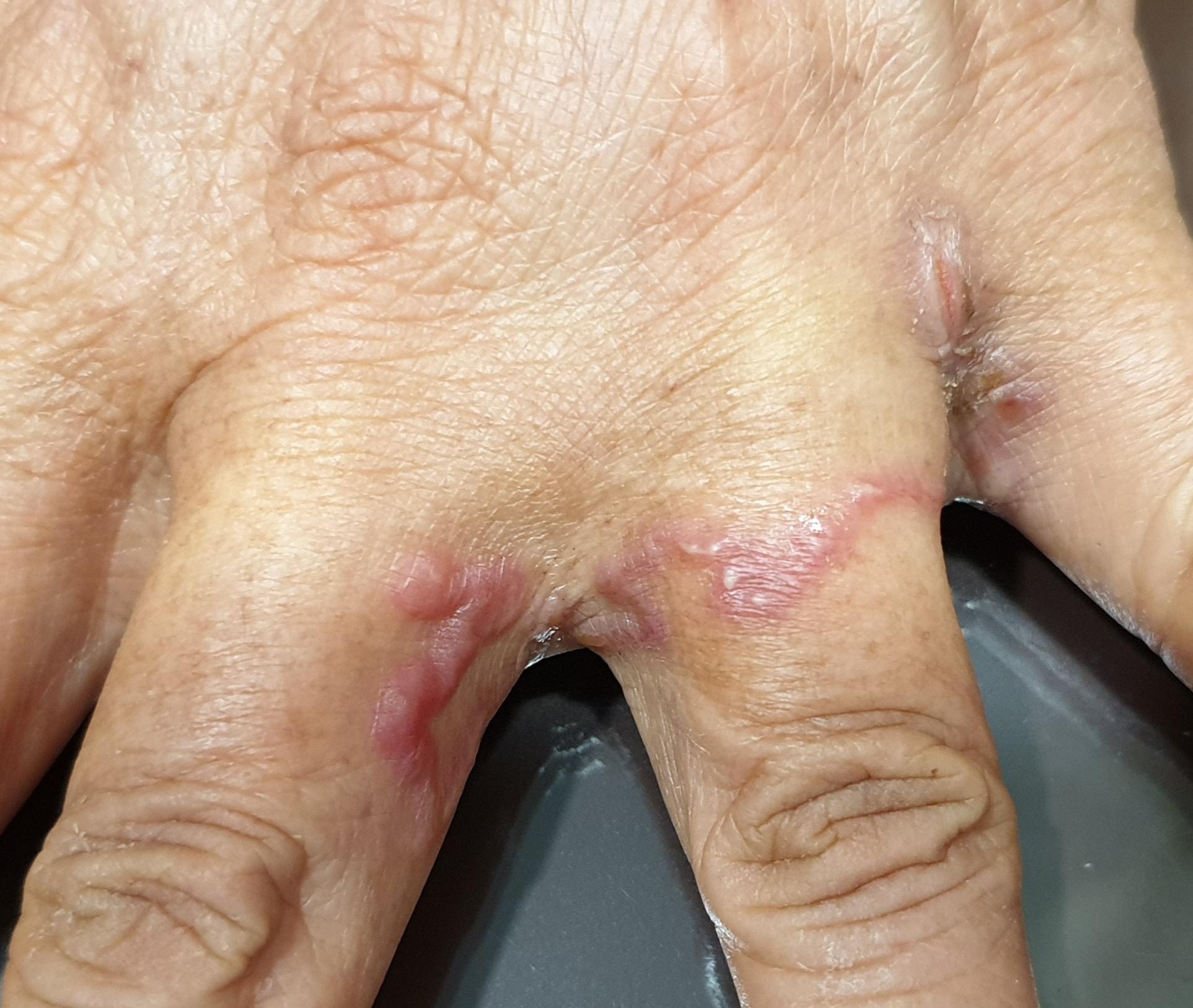 """แพทย์เตือน """"โรคพยาธิชอนไชผิวหนัง"""" กำลังระบาด แนะอย่าเดินเท้าเปล่าหรือสัมผัสดินที่เปื้อนมูลสัตว์"""