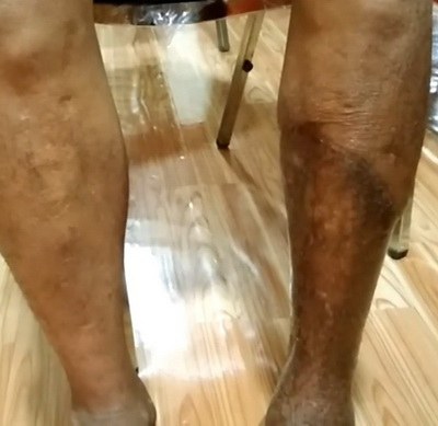 กลุ่มเกษตรกรใน จ.หนองบัวลำภูที่ใช้สารเคมี เจ็บป่วยเกิดโรคเนื้อเน่า