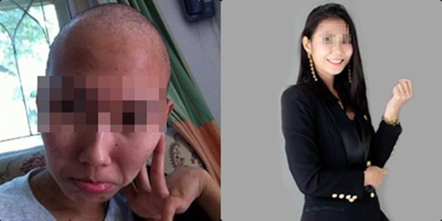 สาวนักสู้ หายขาดมะเร็งต่อมน้ำเหลือง เผยชีวิตเป็นอุทาหรณ์ให้ผู้ป่วยสู้โรคร้าย