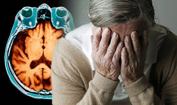 ชะลอสมองเสื่อมในผู้สูงวัย / พลโทนายแพทย์ สมศักดิ์ เถกิงเกียรติ