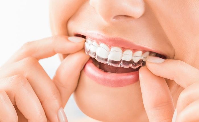 ฟันเรียงสวย ยิ้มอย่างมั่นใจ ด้วยเทคนิคจัดฟันใส